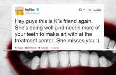 Tweet Sweeper: Ke$ha wants you to send her your teeth… seriously