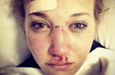 Here's how 18-year-old Rowan Cheshire looks after crashing on Sochi halfpipe